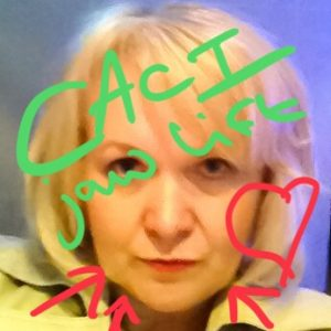 My experience with CACI Jaw/Jowl Lift Treatment…