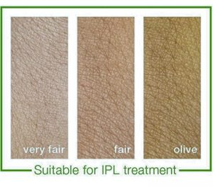 IPL Treatment – My (fairly painful) experience of getting rid of Thread Veins